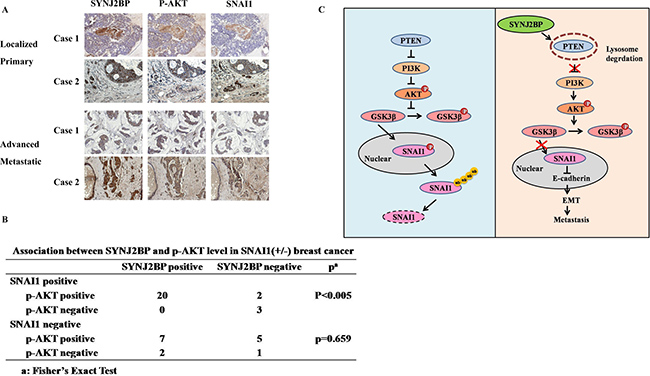 Correlation between SYNJ2BP, p-AKT and SNAI1 expressions in human breast tissue samples.