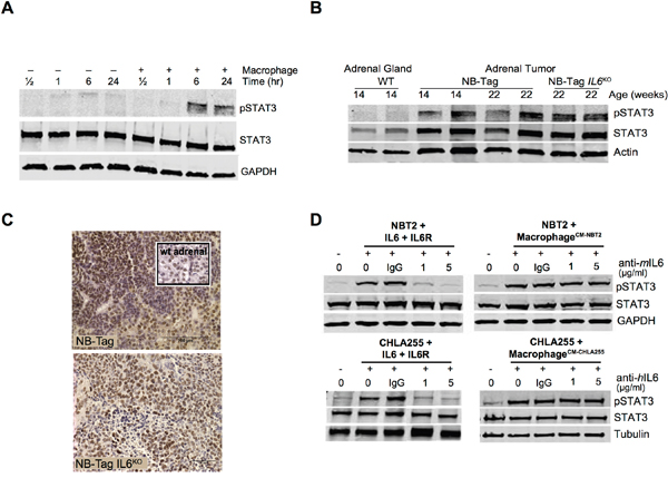 STAT3 activation in human and murine NBL cells by macrophages does not require IL-6.