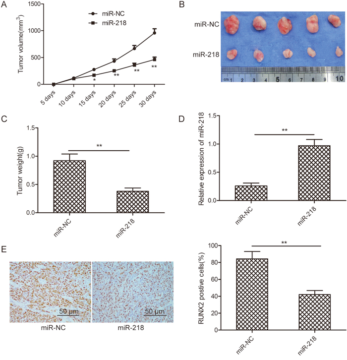 miR-218 suppresses ovarian cancer growth in vivo by repressing RUNX2.