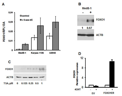 Epigenetic factors contribute to FOXO1 silencing.