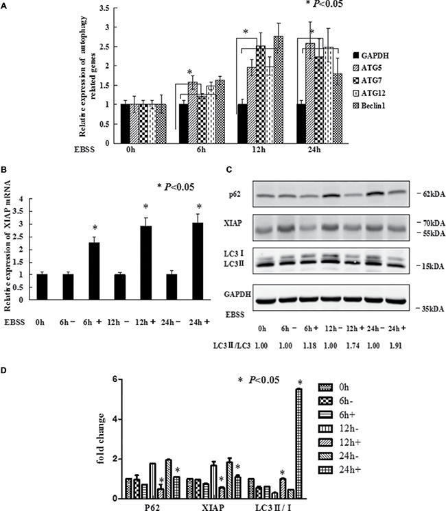 EBSS induces autophagy in breast cancer cells.
