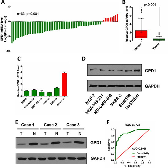 GPD1 is downregulated in human breast cancer.