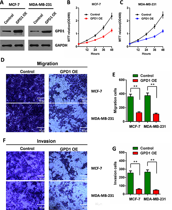 GPD1 inhibits human breast cancer cell proliferation, migration and invasion.
