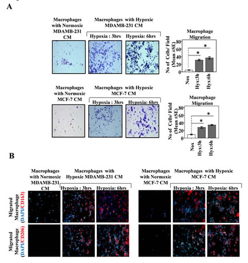 Fig.2: Hypoxia Primed Breast Cancer Cells Release Soluble Mediators to Chemoattract Macrophages and Migrated Macrophages Exhibit M2-polarized phenotype.