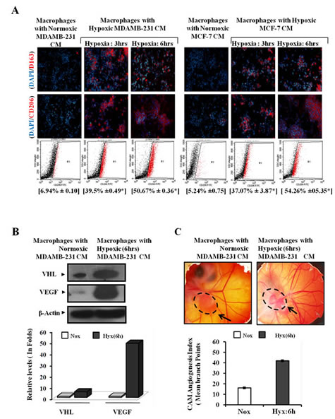 Fig.3: Enhanced M2-polarization of Macrophage with Potentiation of Pro-angiogenic Function by Hypoxic Breast Cancers Cells through the Release of Soluble Mediators.
