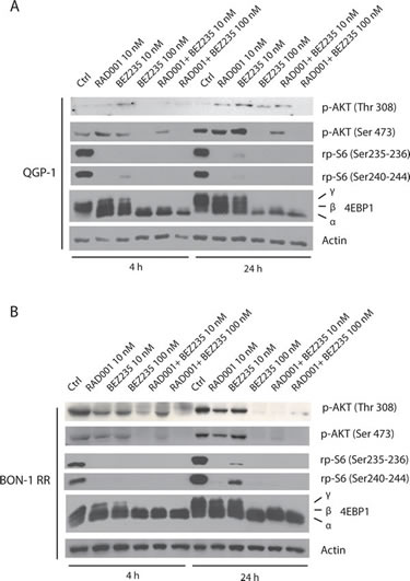 Combined treatment with BEZ235 and RAD001 efficiently suppresses phosphorylation of AKT and 4EBP1 in RAD001-resistant PET cells.