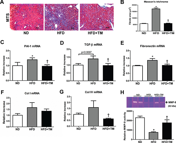 Early TM5441 treatment attenuates hepatic fibrosis in HFD mice.