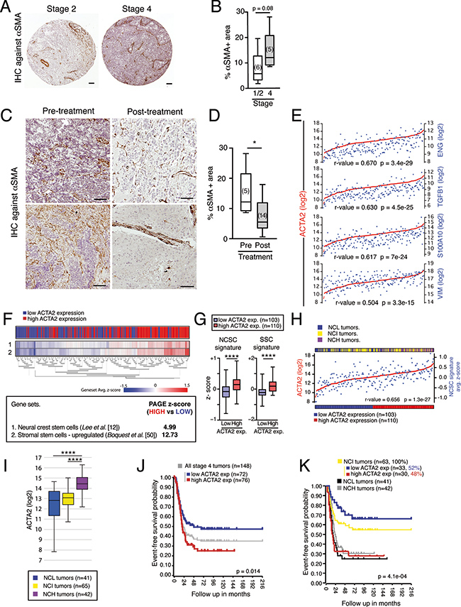 SMA correlates to NCSC gene signature expression and aggressiveness in stage 4/M NBs.