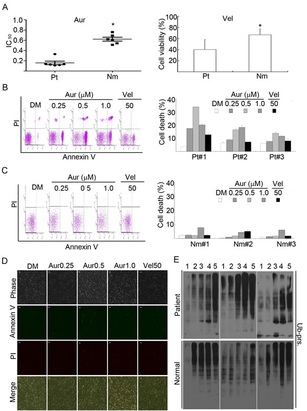 Aur inhibits the proteasome and specifically induces cytotoxicity in cancer cells from acute myeloid leukemia (AML) patients.