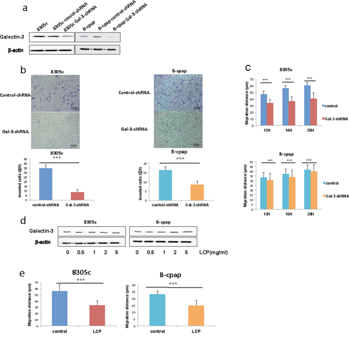 Inhibition of Galectin-3 suppressed thyroid cancer cell migration and invasion.