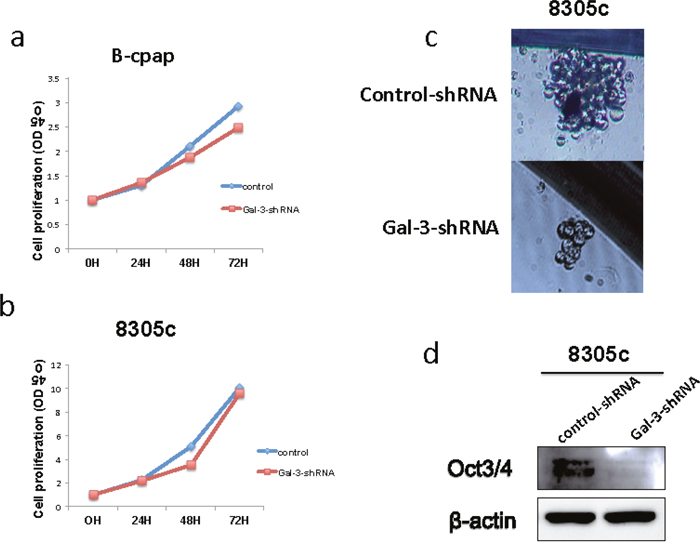 Down-regulation of Galectin-3 had different impact on thyroid cancer cell proliferation and their property of stem cell.