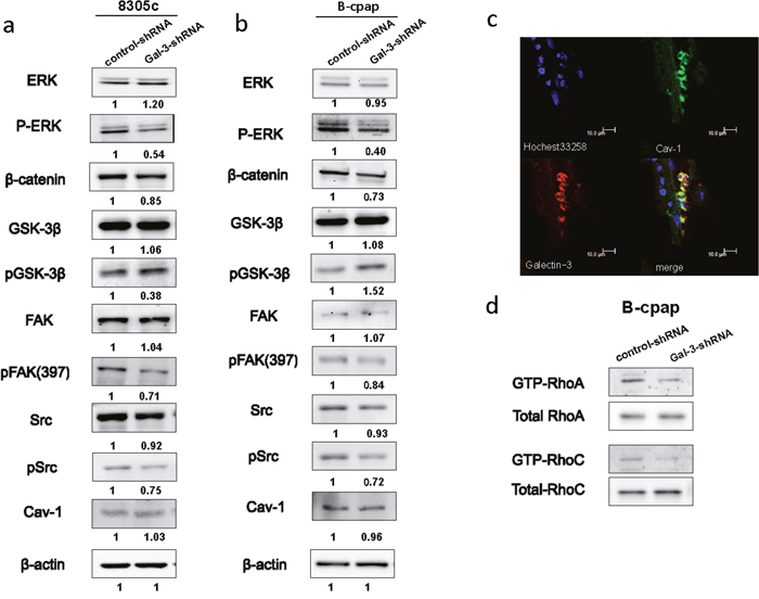 Down-regulation of Galectin-3 inhibited the phosphorylation of ERK, Src, and FAK, promoted the phosphorylation of GSK-3β, suppressed the expression of β-catenin and inhabited the activation of RhoA and RhoC.
