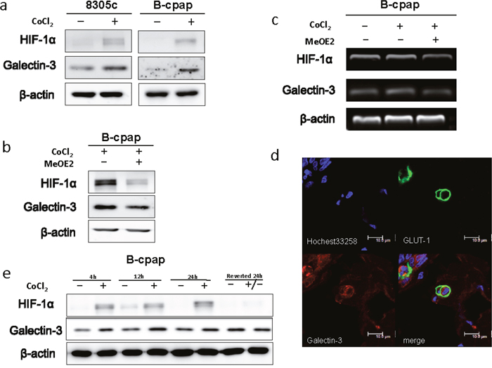 Hypoxia promoted the expression of Galectin-3 via a HIF-1α-dependent way.