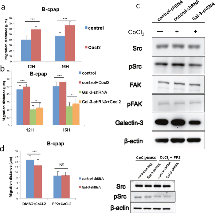 Galectin-3 was responsible for the increased migration of B-cpap cells in hypoxic microenvironment, and down-regulation of Galectin-3 offset part of this increase and induced Src deactivation.