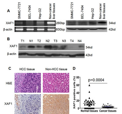 Expression of XAF1 in HCC cells and HCC tissues.