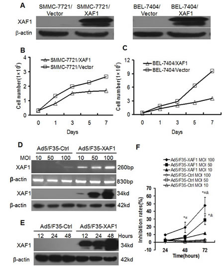 Overexpression of XAF1 inhibited cell proliferation of HCC cells. (A) The overexpression of XAF1 protein in stable SMMC-7721/XAF1 transfectants and BEL-7404/XAF1 transfectants compared to the stable control transfectants detected by Western Blot. (B-C) Overexpression of XAF1 inhibited cell proliferation in stable SMMC-7721/XAF1 transfectants (B) and BEL-7404/XAF1 transfectants (C). The stable transfectants were cultured and counted in indicated time points. Data represent the means ± SD of three independent experiments.*