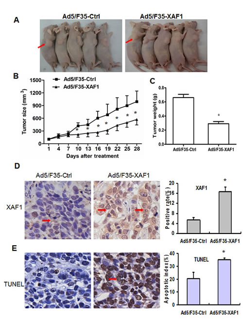 Ad5/F35-XAF1 inhibits tumor growth in vivo.