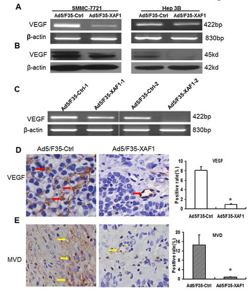 Ad5/F35-XAF1 inhibits VEGF expression and tumor angiogenesis.