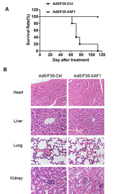 Ad5/F35-XAF1 prolonged the survival of mice.