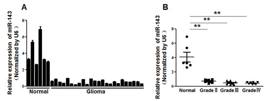 Figure1: MiR-143 expression was downregulated in glioma.