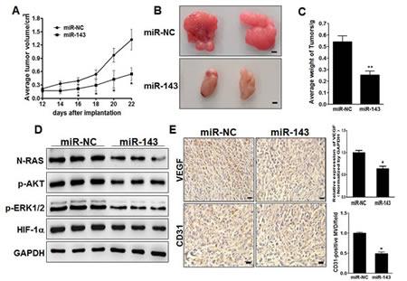 Figure7: MiR-143 inhibits tumor growth and angiogenesis