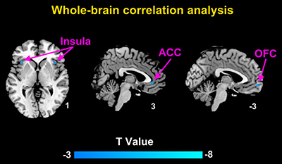 Brain regions with significant correlation between the GM volumes and daily pain scores in CD patients with abdominal pain using whole-brain correlation analysis.