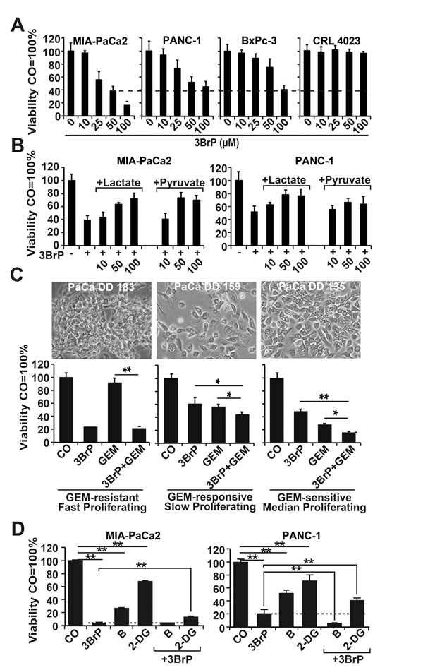3BrP strongly inhibits viability in highly malignant cells and thereby sensitizes them to gemcitabine.