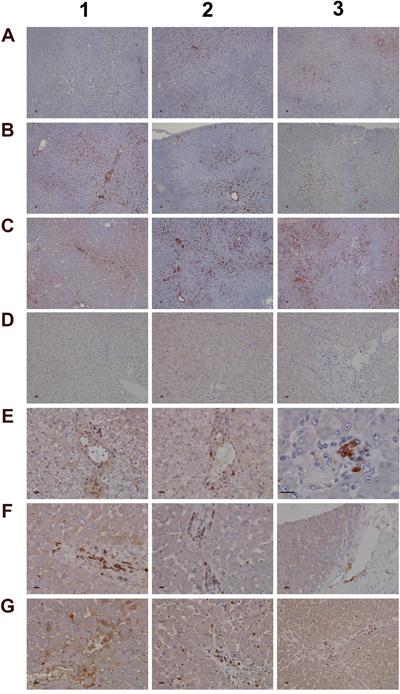 Immunohistochemistry staining of IgM and complement factor B in liver sections of control and diclofenac treated animals after daily dosing for 28 days.
