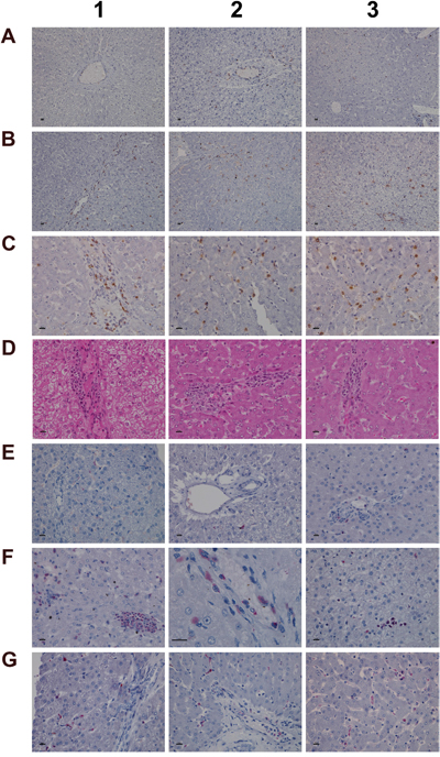 Immunohistochemistry staining of HIF1A and CAE in liver sections of control and diclofenac treated animals after daily dosing for 28 days.