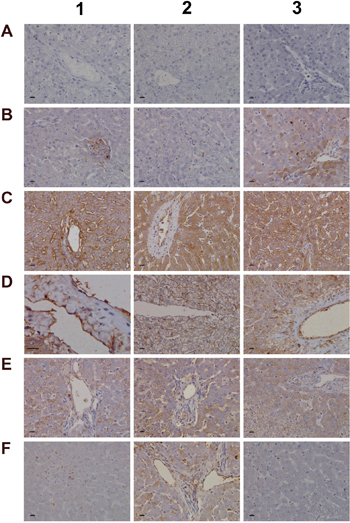 Immunohistochemistry staining of SAA1 and VCAM-1 in liver sections of control and diclofenac treated animals after daily dosing for 28 days.