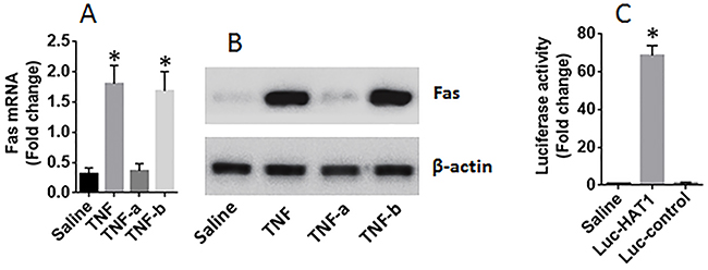 HAT1 is required in the expression of Fas in lung epithelial cells.