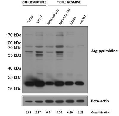 Low basal Arg-pyrimidine adducts accumulation in triple negative breast cancer cell lines.