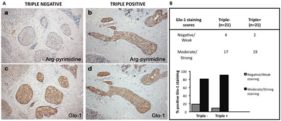 Representative immunohistochemical staining of Glo-1 expression in triple negative versus triple positive human breast tissues.