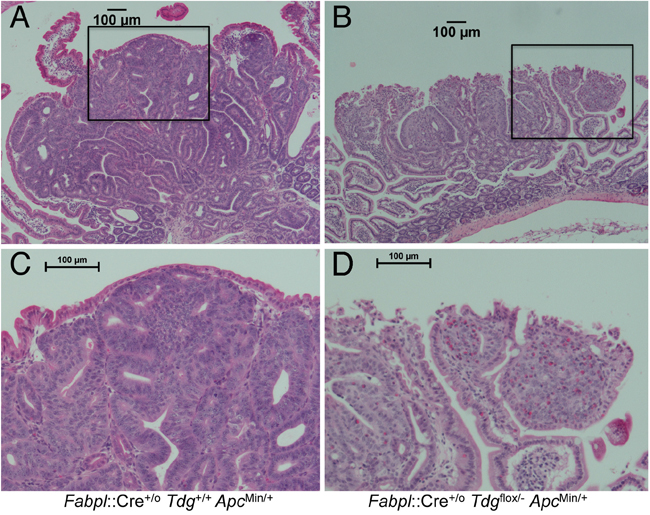 Histopathology of poorly differentiated small intestinal adenomas in Fabpl::Cre+/o Tdgflox/- ApcMin/+ mice.