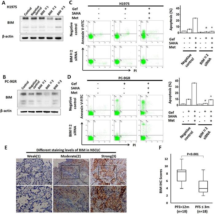 Knockdown of BIM expression attenuates apoptosis.