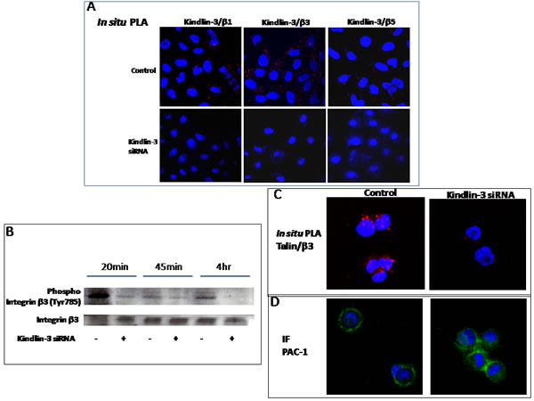 Role of Kindlin-3 in integrin function in tumor cells A.