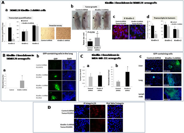 Kindlin-3 knockdown promotes metastasis formation through Integrin mediated effects A.