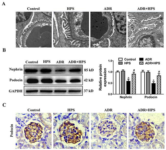 Effect of hyperoside on adriamycin-induced podocyte injury in vivo.