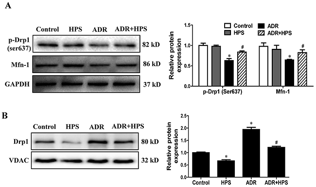 Effect of hyperoside on adriamycin-induced mitochondrial fission in vivo.