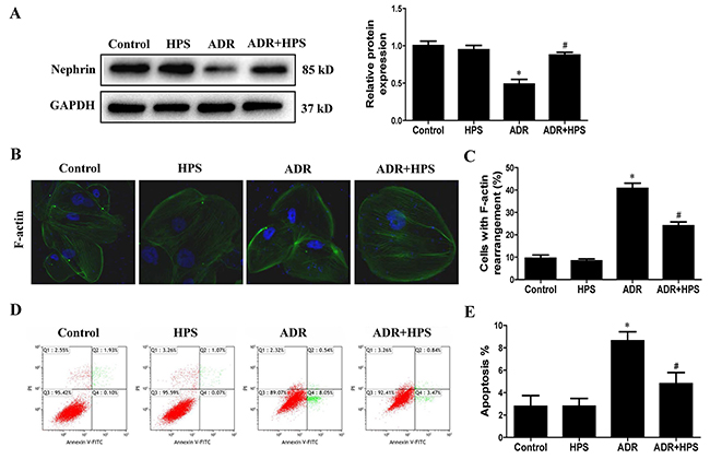Effect of hyperoside on adriamycin-induced podocyte injury in vitro.