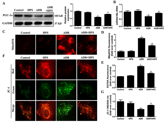Effect of hyperoside on adriamycin-induced mitochondrial dysfunction in vitro.