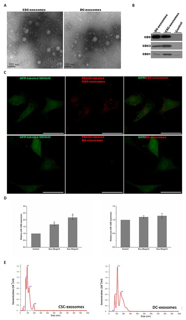 Characterization of exosomes.