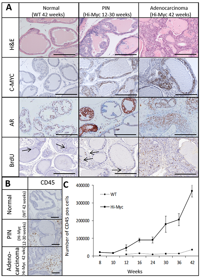 The Hi-Myc model follows a multistep prostate cancer development which is accompanied by an influx of immune cells.