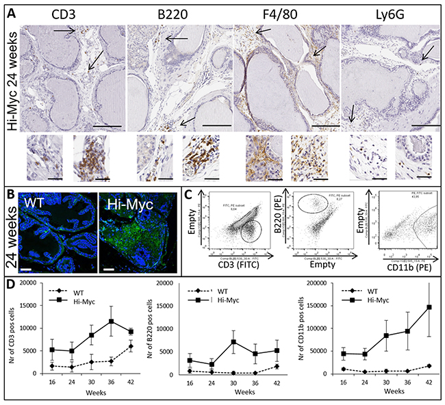 Influx of key players of the adaptive and innate immune system is observed in concert with prostate cancer development.