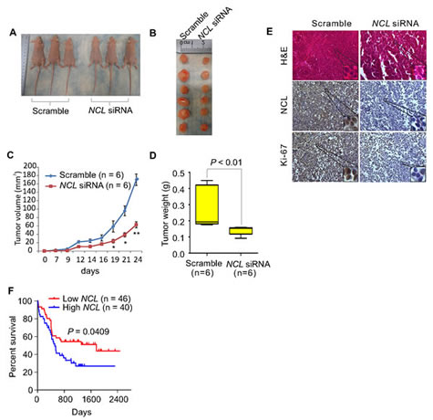 NCL aberrations contribute to the survival and expansion of the leukemia cells