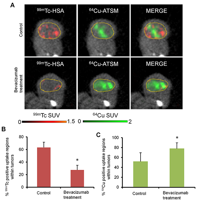 Simultaneous SPECT/PET/CT imaging for intratumoral vascularity and hypoxia.