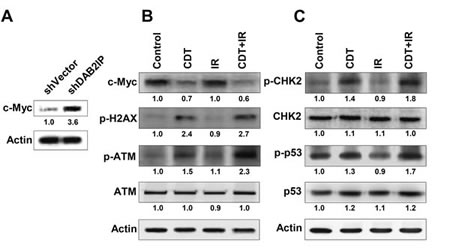 CDT increases IR-induced DSB in DAB2IP-deficient PCa cells.