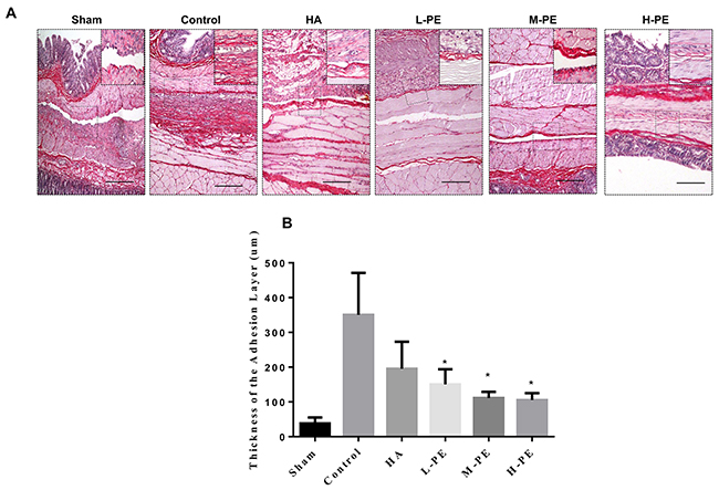 Picrosirius red staining revealed the presence of fibrosis in the postoperative peritoneal adhesions or in the damaged areas on the opposing parietal peritoneum in each group of rats (n=8).