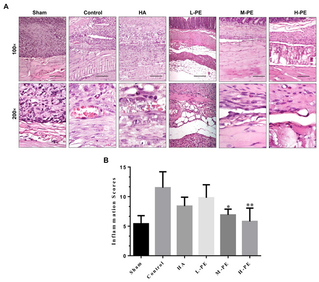 Inflammatory cell infiltration in postoperative peritoneal adhesions or the damaged areas on the opposing parietal peritoneum in each group of rats (n=8).