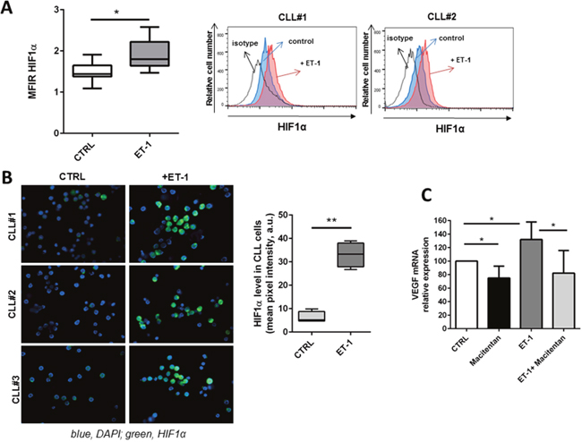 ET-1 stimulation induces a pro-angiogenic profile in CLL cells.